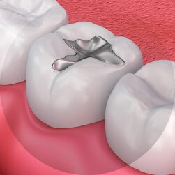 Painless Tooth Fillings
