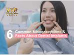 6 Common Misconceptions & Facts About Dental Implants